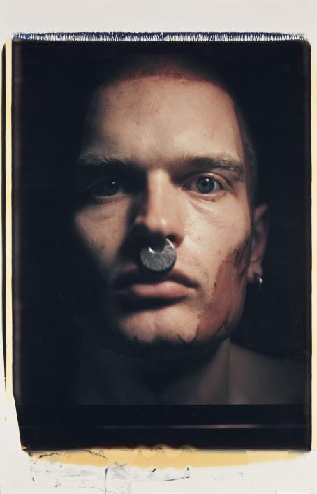 Lähikuva miehen kasvoista. Hänellä on siniset silmät, iso nenäkoru ja poskessa iso punainen läikkä.