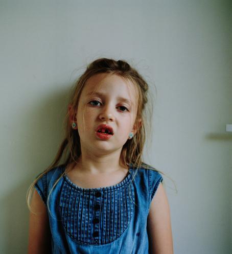 Tyttö sinisessä paidassa ja nappikorvakoruissa. Hänellä on suu vähän auki, yksi hammas puuttuu ylärivistä ja kolon ympärillä olevat hampaat ovat verisiä.
