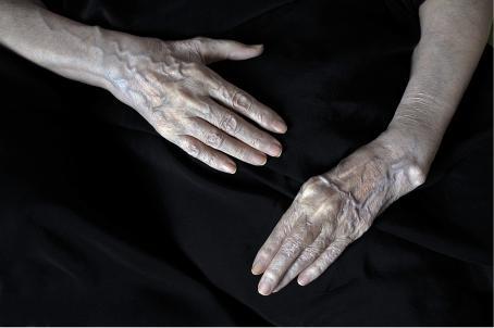 Mustaa taustaa vasten ihmisen kädet. Verisuonet erottuvat selkeästi ja kädet näyttävät vanhoilta.