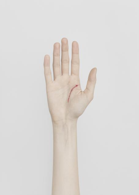 Valkoista taustaa vasten ihmisen käsi kämmenpuoli ylöspäin. Kämmenen oikeassa reunassa on punainen haava, joka seuraa kämmenen viivaa.