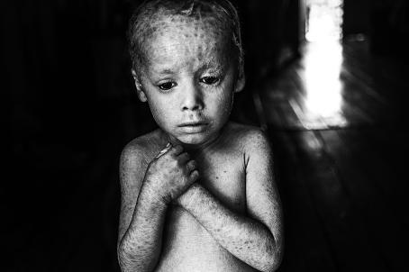 Mustavalkoisessa kuvassa pieni, paidaton lapsi, joka pitää käsiään rinnan päällä. Hänen ihonsa on kuiva ja siinä on pieniä tummempia kohtia ja viivoja.