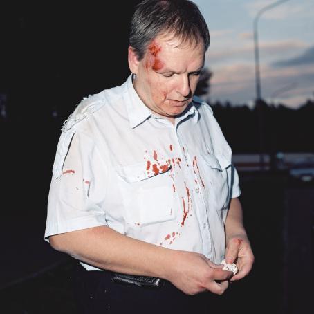 Mies, jolla on ruhje otsassa. Hänen paidallaan on verta.